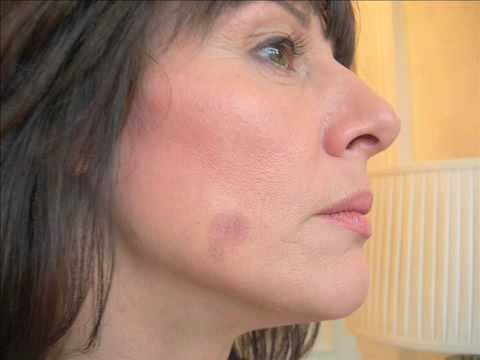 How To Remove Oil From Face Naturally